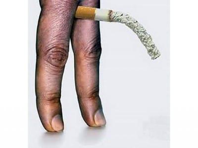 Курение  уменьшению  полового органа
